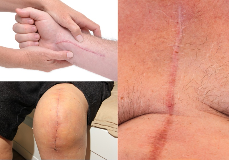 ScarWork™ Therapy knee, arm and chest scars